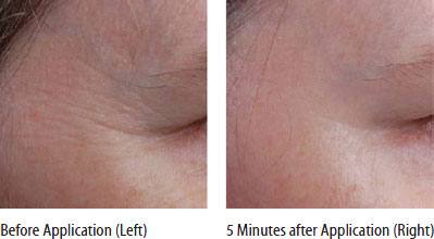 Photos showing immediate anti-wrinkle effect